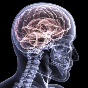 How to Deal With a Traumatic Brain Injury (TBI) After an Accident